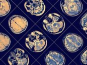 IBM Sets hope for Alzheimer's Disease Diagnoses with Machine Learning
