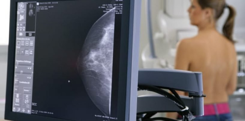 Google's AI Can Read Mammograms to Detect Breast Cancer
