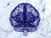 Deep Learning to Diagnose Dystonia in Milliseconds